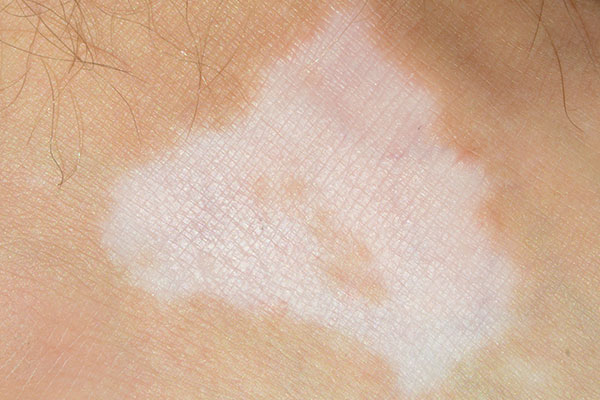 A common skin disease could be skin irritation, skin reddening, vitiligo or psoriasis 2