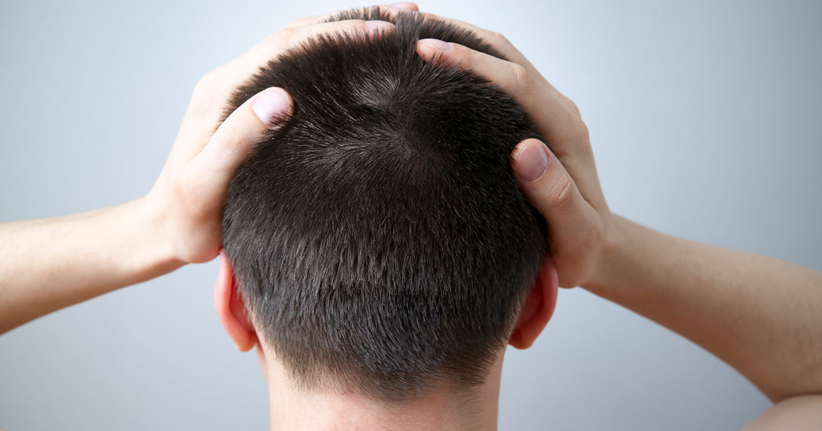 Psoriasis Treatments for Your Scalp - Healthline